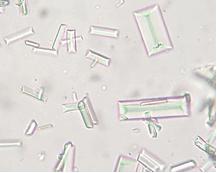 cristaux struvite cystite furet